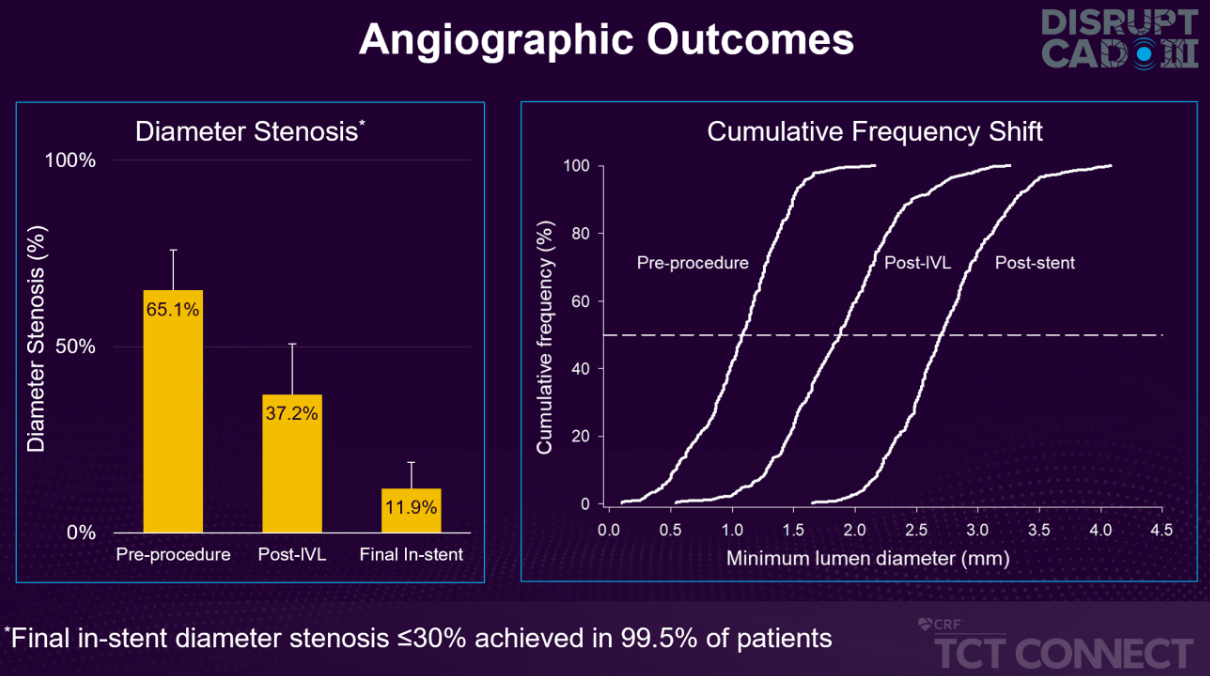 angriographic outcomes